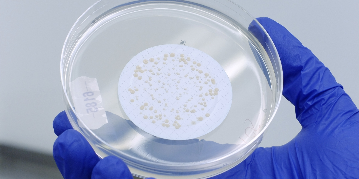 Environmental Mycobacteria test plate